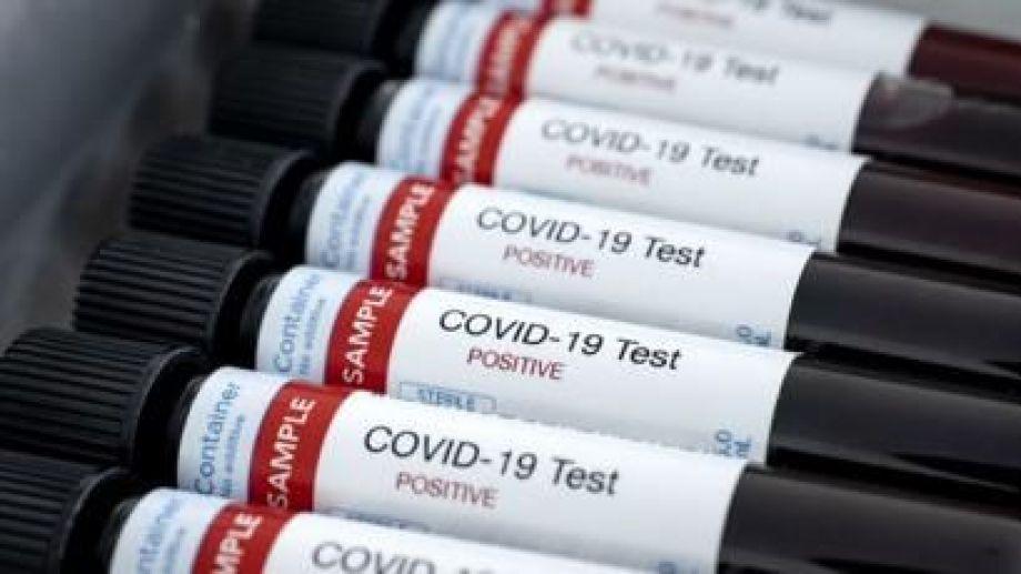La campaña apunta a proteger a quienes están vinculados al coronavirus. (Archivo).-
