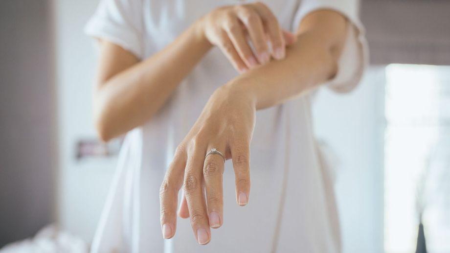 Brotes frecuentes, picazón intensa, irritación, dolor, enrojecimiento, costras e infecciones son algunos de los síntomas.