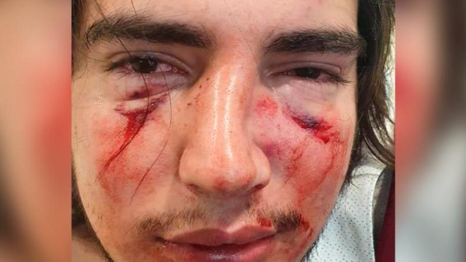 Rugbiers atacaron a un joven en Córdoba. Foto: gentileza