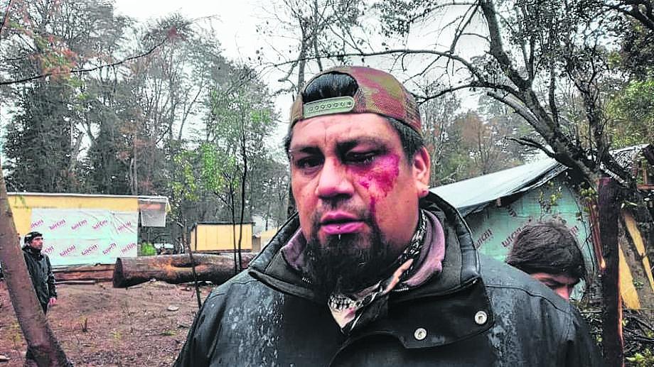 La evidencia de lesiones y daños físicos en el rostro de un hombre, tras el procedimiento policial. Foto: gentileza