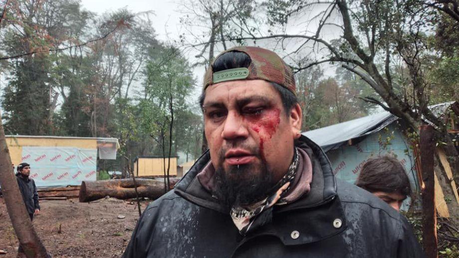 Se produjeron violentos episodios en la toma de Villa La Angostura (Gentileza Diario Andino)