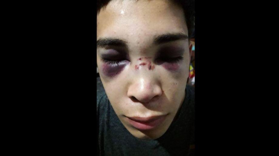 Un joven de Centenario denuncia que la policía lo agredió de forma brutal, (Foto facebook Erica Villalobos)