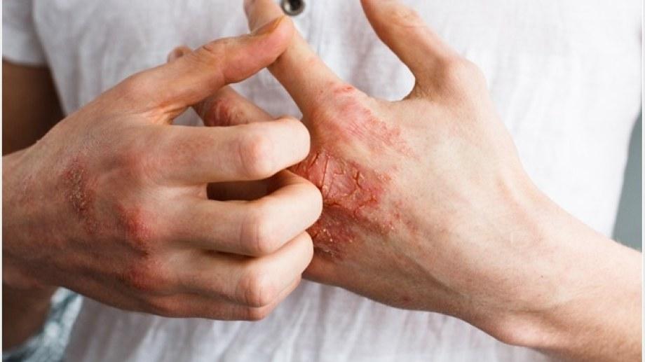 Enrojecimiento, ardor, picazón... y, sobre todo, inflamación. Tan común como molesto, es algo tratable.